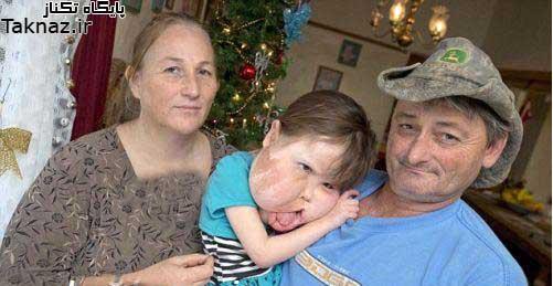 دختری با بیماری نادر و عجیب در گونه هاش !+ عکس
