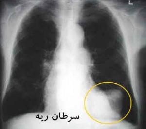 ۱۰ علامت احتمالی بیماری سرطان ریه