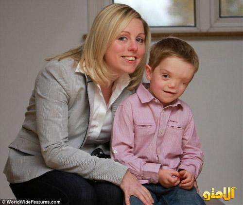 پسری با صورت نصفه ! + عکس
