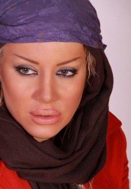 پشیمانی بازیگر زن ایرانی از تزریق ژل به لب هایش!