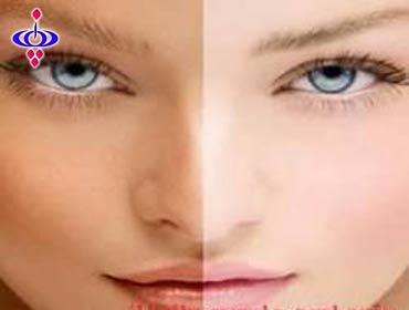 روشهای اعجاب انگیز برای زیبا تر شدن