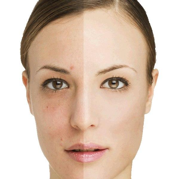 6 روش برای از بین بردن لکه های قهوه ای روی پوست