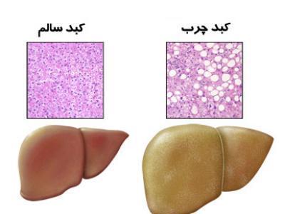 درمان طبیعی کبد چرب