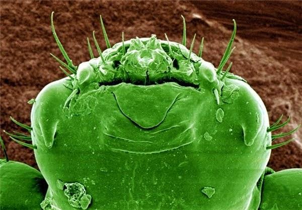 تصویر خنده دار از یک شپش زیر میکروسکوپ