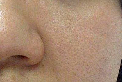 ارایش و گریم کانسیلر کاموفلاژ منافذ باز صورت و پوست پرتقالی را چطور با گریم بپوشانیم؟