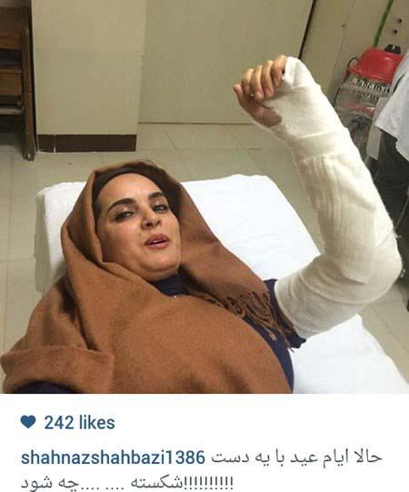بازیگر زن ایرانی با دستی شکسته در بیمارستان! + عکس