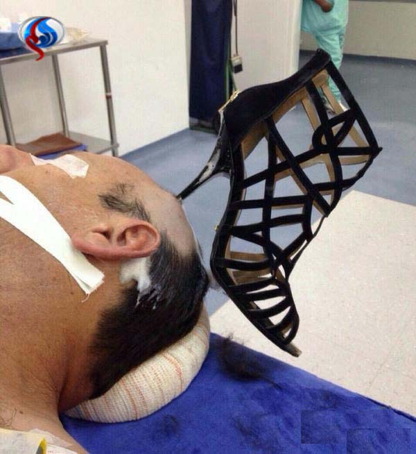 پاشنه کفشی در سر شوهر! + عکس