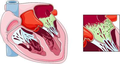 بیماری آندوکاردیت عفونت عضله قلب