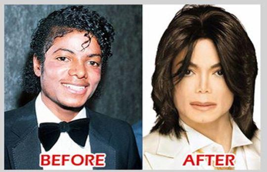 جراحی زیبایی ناموفق در بین افراد مشهور / عکس