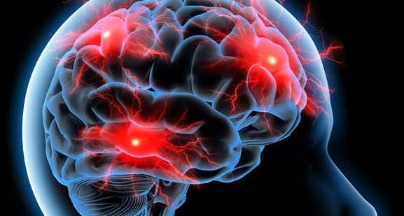 کشف ارتباط بین تغذیه با اعصاب و روان