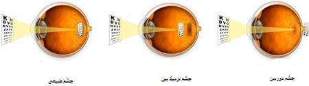 علت نزدیک بینی و دوربینی چشم چیست؟