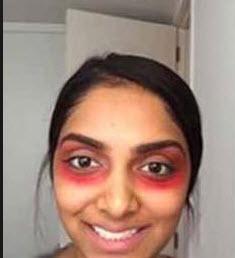 رژ لب قرمز راهی اسان برای درمان تیرگی دور چشم