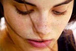 علت بوجود آمدن لکه های پوستی چیست؟