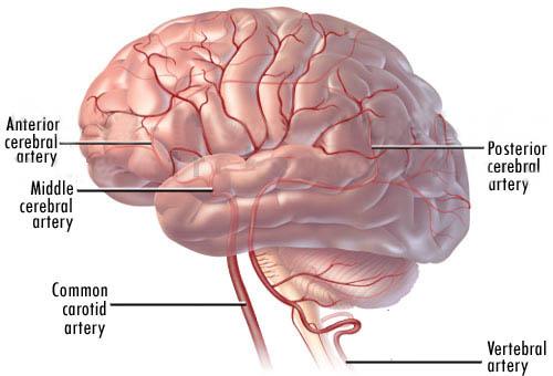 پیشگیری از سکته مغزی با این روش ها ...
