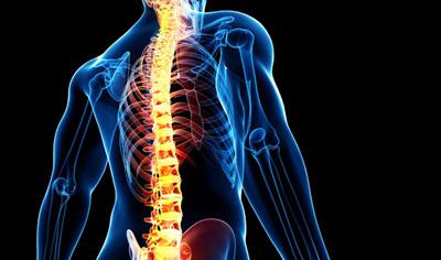 درمان شکستگی ستون فقرات با ورتبروپلاستی