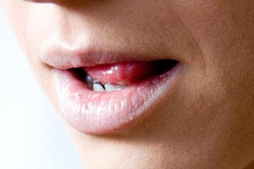 چگونه از خشک شدن دهان جلوگیری کنیم؟