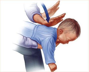 چگونه از خفگی نوزادان جلوگیری کنیم؟