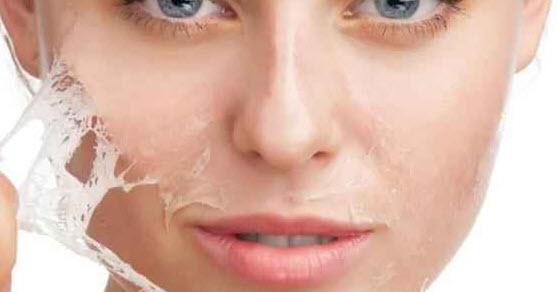 درمان جوش های زشت صورت با این روش ها