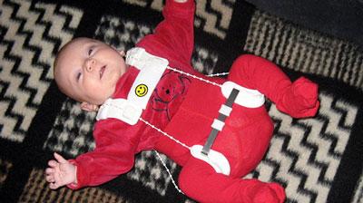 چگونه در رفتگی لگن نوزاد را درمان کنیم؟
