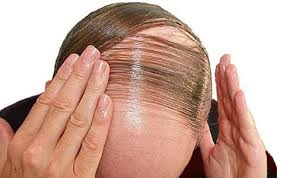 علت ریزش مو مردان چیست؟