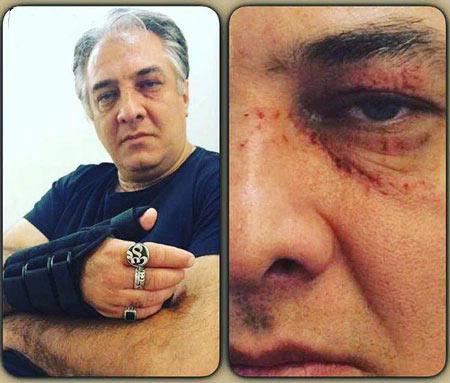 بازیگر مشهور ایرانی دچار حادثه شد! + عکس