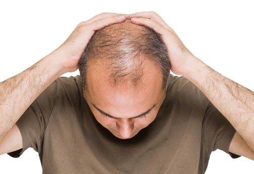 چگونه موهای از دست رفته را بازیابی کنیم؟