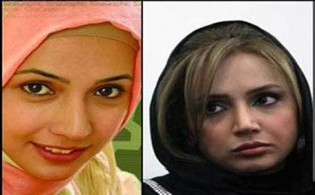 بازیگران زن ایرانی قبل و بعد از عمل جراحی / عکس
