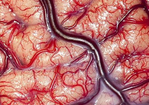 عکس شگفت انگیز از مغز انسان زنده