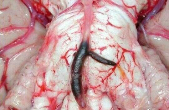 عکس عجیب درون مغز بعد از سکته شدید!