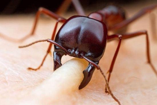 تصاویر جالب و دیدنی لحظه گاز گرفتن مورچه از انسان