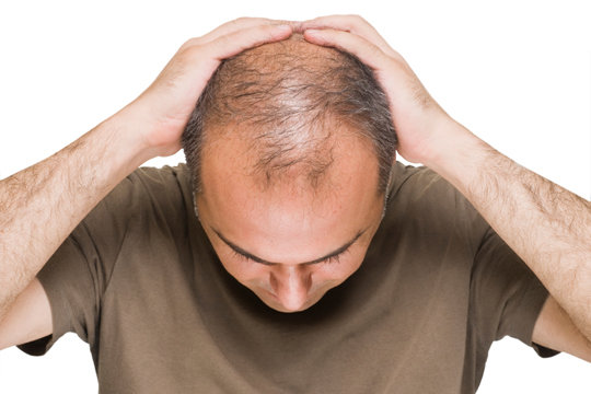 چرا موهای آقایان بیشتر می ریزد؟