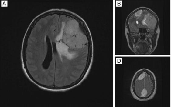 ایجاد تومور مغزی به دلیل افسردگی!