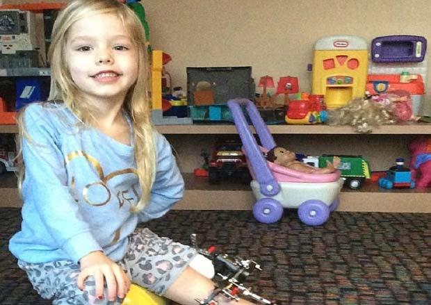 دختر بچه ای که روزی سه بار پایش را می شکستند! + عکس