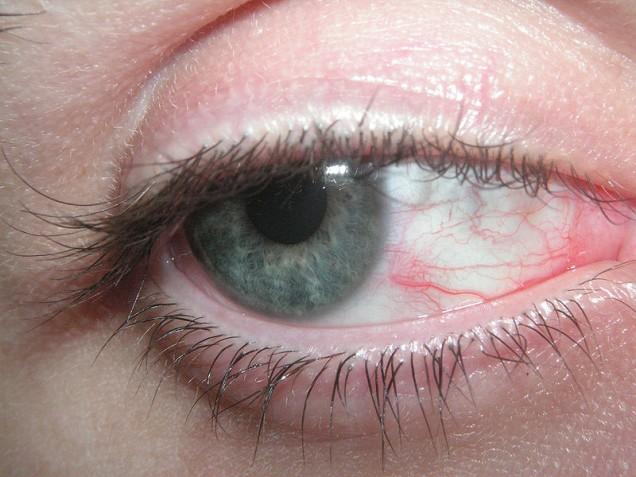 تشخیص بیماری از طریق چشم ها