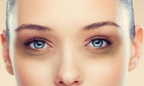 سیاهی زیر چشم ناشی از چیست؟