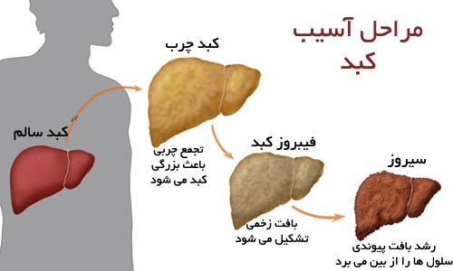 برای مبتلایان به کبد چرب چه غذاهایی مفید و چه غذاهایی مضر است