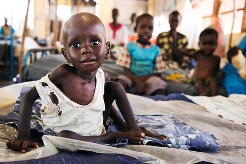 کودکان دارای سوء تغذیه در سودان جنوبی