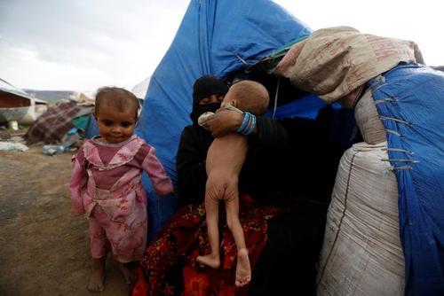 آوارگان جنگی دچار سوء تغذیه در اردوگاهی در حومه شهر صنعا یمن