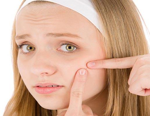 5 درمان خانگی برای از بین بردن جوش های سر سیاه