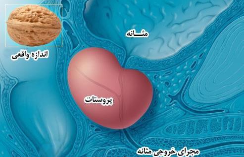 نشانه های هشدار دهنده سرطان پروستات