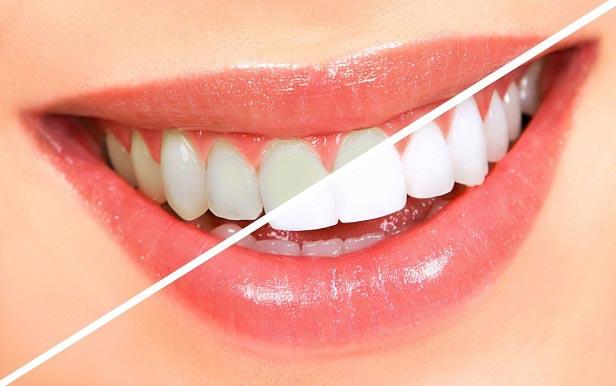 جرم گیری دندان با پوست گردو