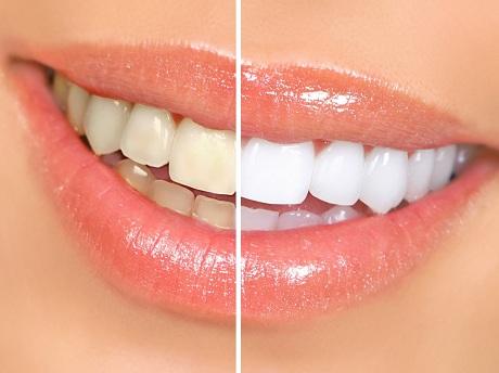 این 6 ماده غذایی باعث ایجاد جرم دندان می شوند
