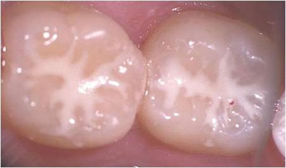 رشد مجدد دندان در آینده نزدیک به کمک تکنولوژی