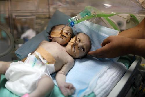 تولد دوقلوهای بهم چسبیده در غزه