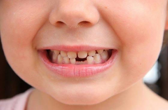 دلیل خراب شدن دندان های شیری