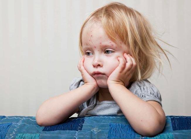 آنچه که باید از ویروس سرخک بدانید
