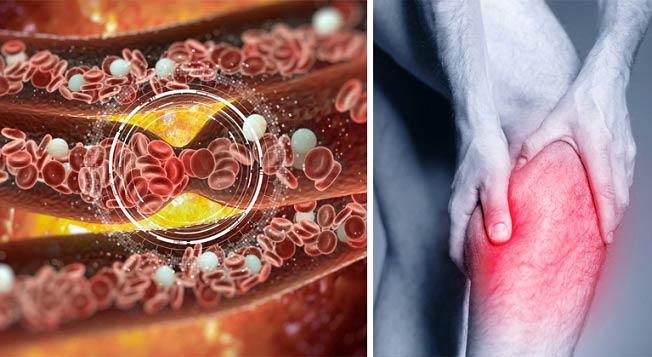 توصیه هایی برای بهبود جریان خون در پاها