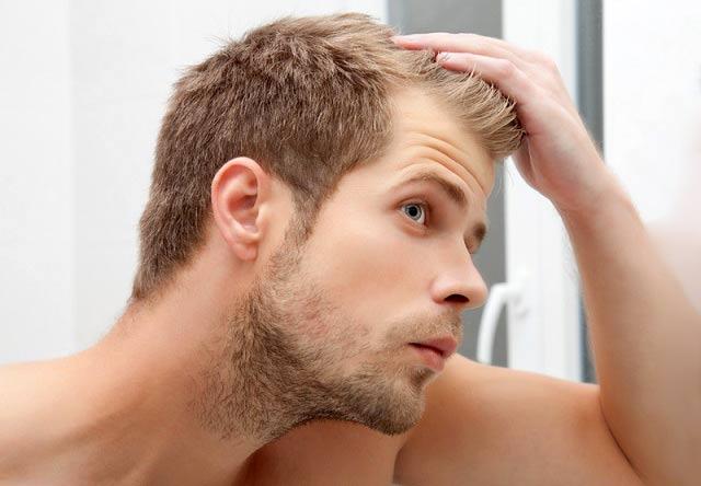 روش هایی برای جلوگیری از ریزش مو در مردان
