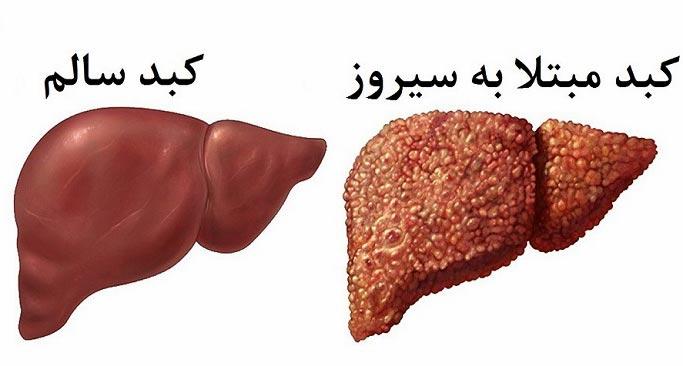 پکیج درمان کبد چرب نیوشا