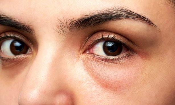 خط چشم برای چشمان پف دار